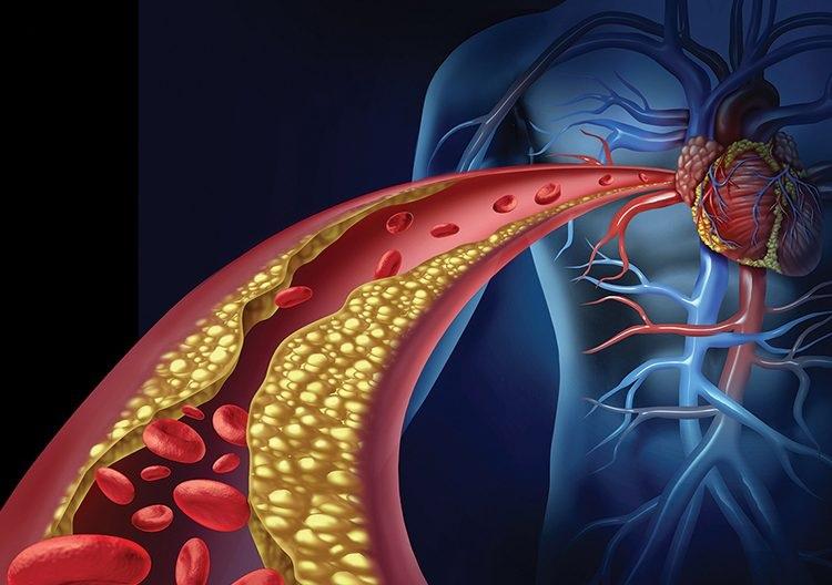 Cuando sube el nivel de azúcar en sangre varias veces al día, todos los días, es como frotar con papel de lija el delicado interior de los vasos sanguíneos