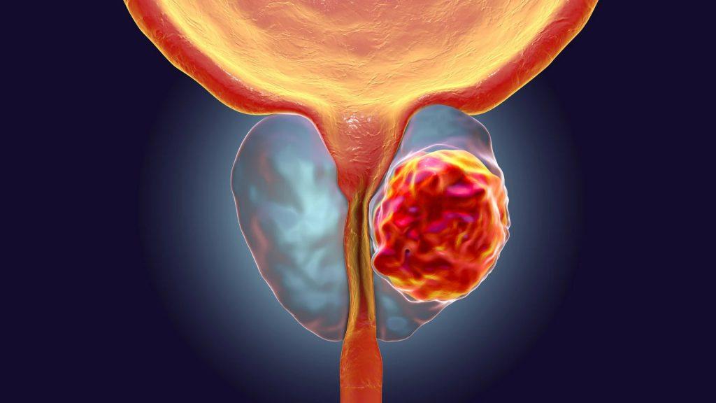 El 50% de varones presentará prostatitis en algún momento de su vida.