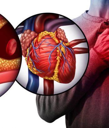 El gran engaño del colesterol