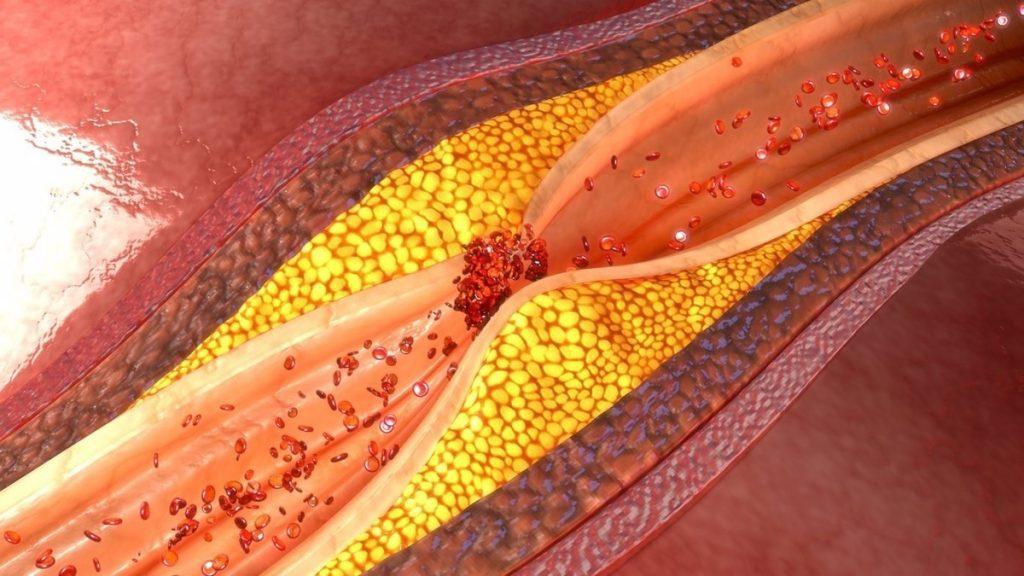 Una arteria enferma se ve como si alguien hubiese cogido un cepillo y lo hubiese frotado varias veces contra las paredes